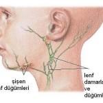 лечение воспаления лимфоузлов в вшее