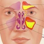 Лечение синусита и гайморита