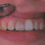 некроз зуба
