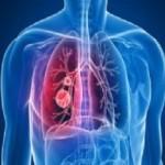 Осложнения затяжной простуды