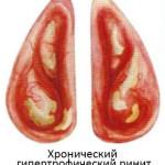 Гипертрофический насморк
