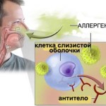Аллергические синусопатии.