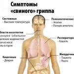 симптомы Н1N1