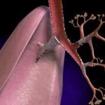 Обструктивный бронхит и его симптомы