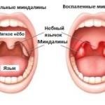 Симптомы и формы воспаления гланд