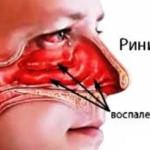 Симптомы ринитов
