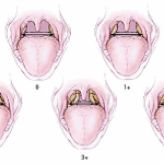 Гипотрофия гланд: степени