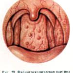 гранулезная форма фарингита
