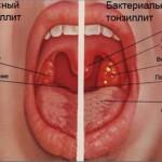 Симптомы и основные причины