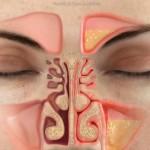 Причина желтой воды из носа – синусит