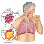 кашель с мокротой