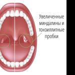 Лечение острого вида тонзиллита