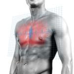 Ревматизм сердечной системы