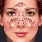Почему заложен нос при гайморите