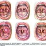 Разновидности ангины и их симптоматика