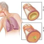 бронхит и кашель