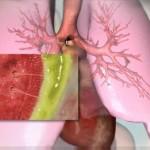 Хроническая форма недуга