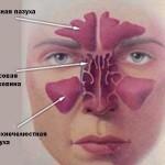 Воспаления придаточных пазух носа