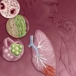 Причины инфекционного кашля