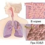 Хронический обструктивный синдром легких