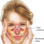 Разновидности катарального синусита