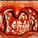 Особенности фарингомикоза