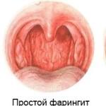Фарингит