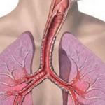 Трахеит, астма, синусит, туберкулез