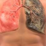 Хронический бронхит: симптомы