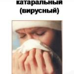 Причины и симптомы катарального синусита