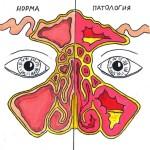 Причины развития гайморита