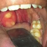 Симптомы паратонзиллита