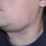 подчелюстной шейный лимфатический узел.