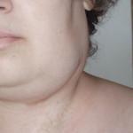 Воспаление лимфатических узлов – классификация