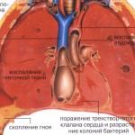 тонзиллофарингит