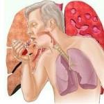 кровохаркание